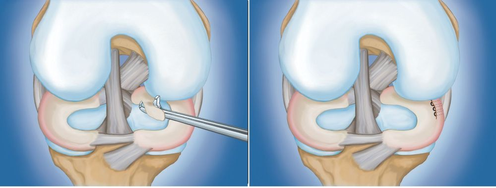 medium resolution of types of arthroscopic procedures for meniscus tears