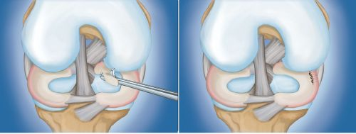small resolution of types of arthroscopic procedures for meniscus tears