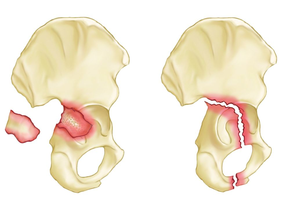 medium resolution of posterior wall and posterior column acetabulum fractures