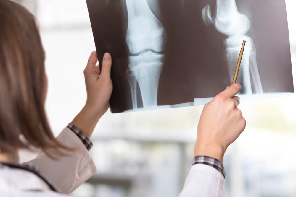 doctor looking at the x-ray picture of knee injury