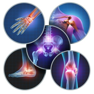 3d illustration showing different types of joint pain