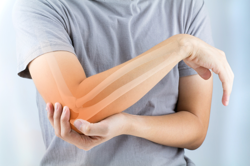 bones highlighted on person's arm and elbow. patient with elbow pain