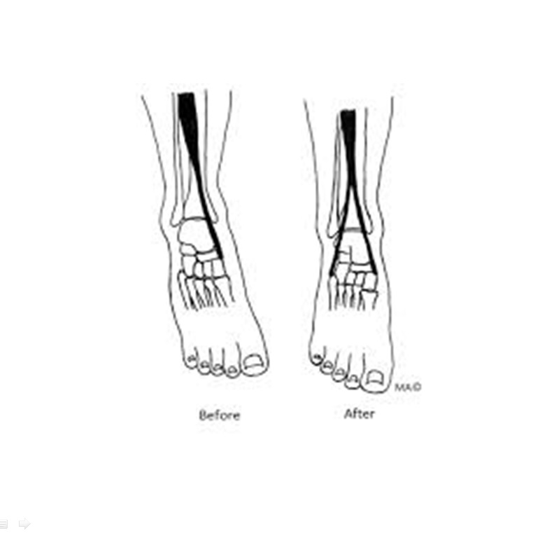 Tibialis Anterior Transfer For Relapsed Club Foot