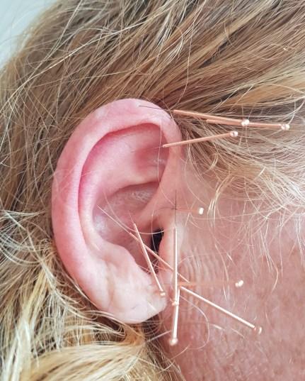 Heuschnupfenohrakupunktur