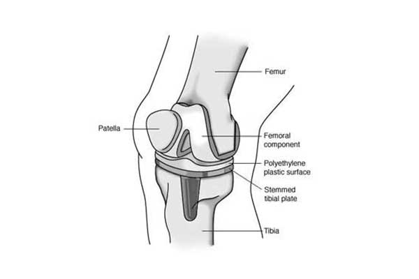 IMPLANTS - PROSTHESES OF TOTAL KNEE ARTHROPLASTY