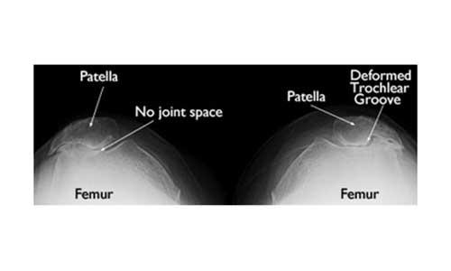 Οστεοαρθρίτιδα (Αρθρίτιδα) της επιγονατιδομηριαίας άρθρωσης