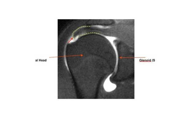 Supraspinatus tendon rupture