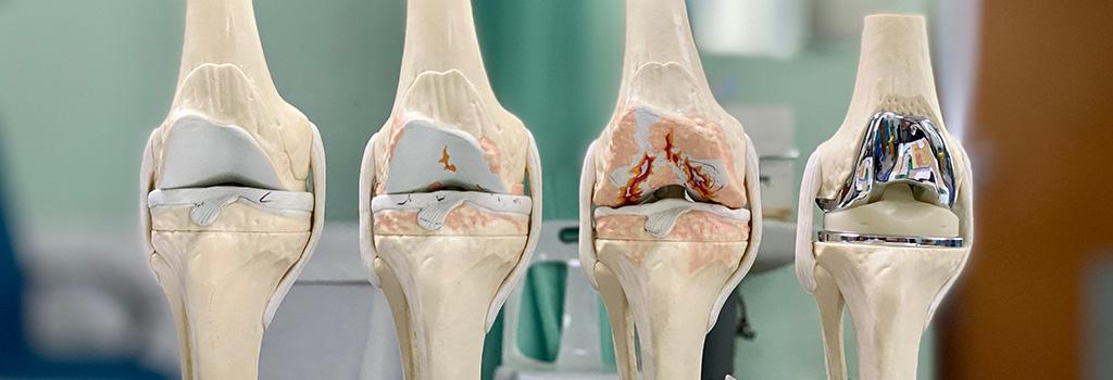 ολική αρθροπλαστική γόνατος (M.I.S.)