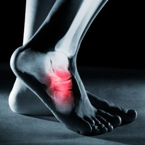 Ankle Arthritis