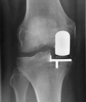 Prothèse du compartiment interne du genou