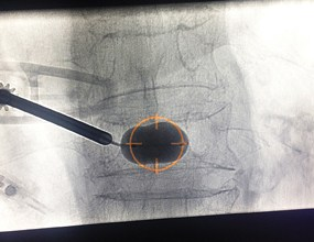 Photo of CareFusion Receives 510(k) Clearance for Vertebral Augmentation System