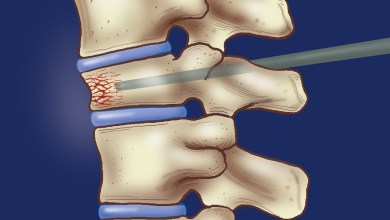 Photo of Patients with spinal compression fractures may not need to wear a brace