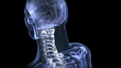 Photo of Stryker Spine Launches LITe® ALIF Procedural Solution