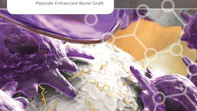 Photo of New Bone Graft Aims to Make Fusions of the Neck Stronger