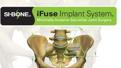 Photo of Health Care Service Corporation (HCSC), the Fourth Largest Health Insurer in the United States, Establishes Exclusive Positive Coverage Policy for SI-BONE's iFuse Implant System® for Minimally Invasive Sacroiliac Joint Fusion