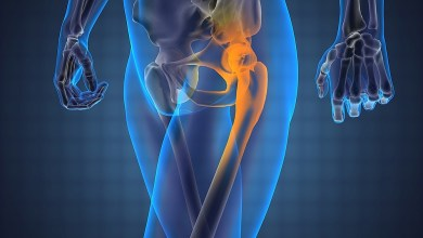 Photo of Minimally Invasive Hip Surgery Isn't Always the Right Choice