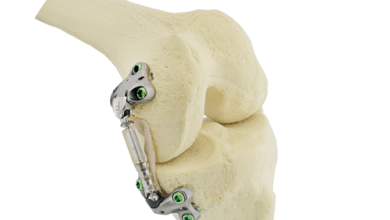 Photo of Moximed: First Patient Treated in US Study of Atlas® System for Unicompartmental Knee Osteoarthritis