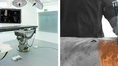 Photo of First clinical cases performed using Philips' augmented-reality surgical navigation system