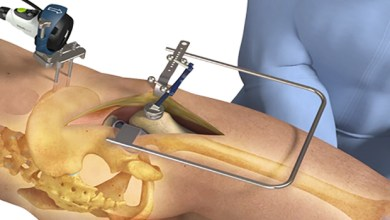 Photo of Intellijoint Surgical® Announces intellijoint HIP® Anterior Application FDA Clearance