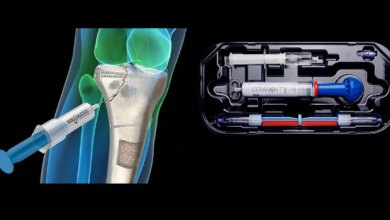 Photo of BoneSupport TM extends U.S. Distribution agreement for Cerament TM Bone Void Filler