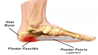 Photo of AMNIOX Study Confirms Benefits of CLARIX FLO for Plantar Fasciitis