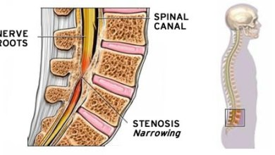 Photo of If You Have Lumbar Spinal Stenosis, There's an Exciting New Option