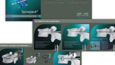 Photo of VEXIM: Continued Growth and Adoption of the SpineJack® in Q2 2017