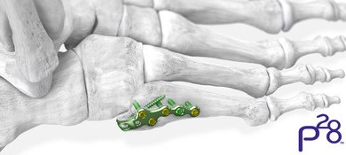 Photo of Paragon 28® launches 5th metatarsal fracture specific plating system, expanding the Baby Gorilla™ Mini Plating System offering