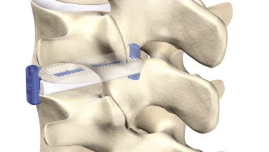 Photo of VGI Medical Enters Lateral Spine Market With 1st Of Its Kind Technology
