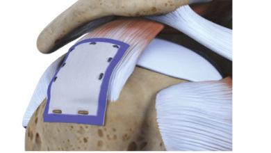 Photo of Rotation Medical Bioinductive Implant Promotes Consistent Rotator Cuff Healing, Mitigates Tear Progression