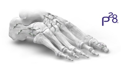 Photo of Paragon 28® expands its JAWS™ Nitinol Staple offering to address corrections of the midfoot and hindfoot