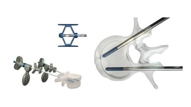 Photo of Stryker announces 510(k) clearance of SpineJack® Implantable Fracture Reduction System