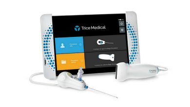 Photo of Trice Medical Acquires SegWAY™ Orthopaedics