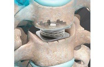 Photo of Orthofix Announces First US Patient Implants Following FDA Approval of the M6-C Artificial Cervical Disc Designed to Treat Cervical Disc Degeneration