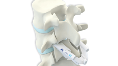 Photo of Medacta's MySpine MC Wins MedTech Breakthrough Award for Orthopaedics and Surgical Innovation