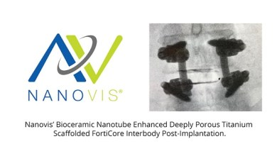 Photo of Nanovis Announces Commercial Launch of New Nanosurface Technology on Spinal Interbody Implants