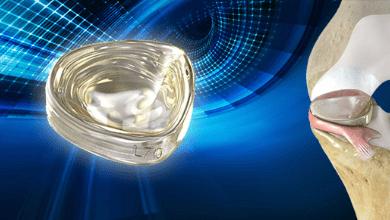 Photo of Active Implants Receives FDA Breakthrough Device Designation for NUsurface® Meniscus Implant