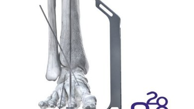 Photo of Paragon 28® Phantom® ActivCore Nail System Receives 510(k) Clearance – Continuous Compression Hindfoot Nail System