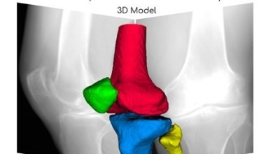 Photo of RSIP Vision Announces Breakthrough AI technology for 3D Reconstruction of Knees from X-ray Images