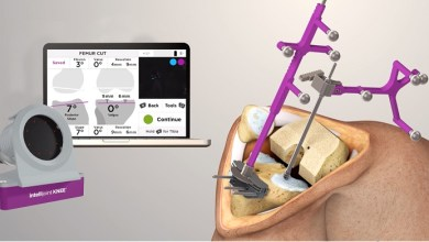 Photo of Intellijoint Surgical launches new smart navigation solution for total knee replacements – Intellijoint KNEE