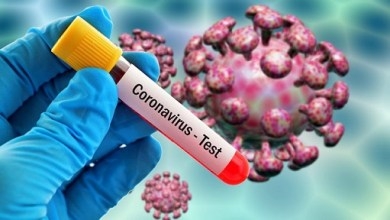 Photo of FDA OKs first coronavirus blood test, crucial for showing immunity and testing vaccines
