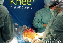 Photo of First Knee Replacement Surgery Successfully Completed Using Augmented Reality Technology from Pixee Medical AR Knee+ and Vuzix M400 Smart Glasses