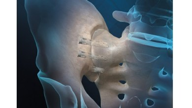 Photo of Orthofix Announces FDA Clearance and First Patient Implants of FIREBIRD SI Fusion System for Low Back Pain