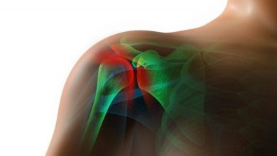 Photo of HSS Study: Good Outcomes After Arthroscopic Shoulder Superior Capsular Reconstruction