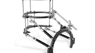 Photo of Carbon22 Receives FDA 510(k) Clearance for FusionFrame™ Ring Lock System