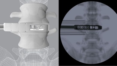 Photo of CoreLink Releases First-Of-Its-Kind Oblique Lumbar Interbody Fusion Instrument Set With 3D Printed Instruments