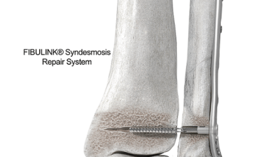 Photo of DePuy Synthes Launches FIBULINK® Syndesmosis Repair System Designed to Enable Precise Tension Control and Physiologic Motion for Patients with Traumatic Ankle Injuries