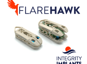 Photo of Clinical Evidence Shows that the FlareHawk® Multiplanar Expandable Cage Delivers Favorable Fusion and Patient Outcomes Demonstrating Conformity to Endplate Anatomy with No Observed Device Subsidence