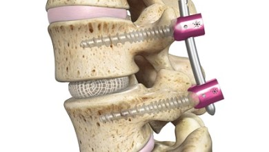 Photo of One-Year Outcomes Data from the OptiMesh® SCOUT (Spineology® Clinical Outcomes Trial) IDE (Investigational Device Exemption) Published in SPINE