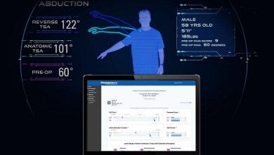 Photo of Exactech Launches Predict+™, First Machine Learning-Based Software that Informs Surgeons with Patient-Specific Outcomes Predictions After Shoulder Replacement Surgery
